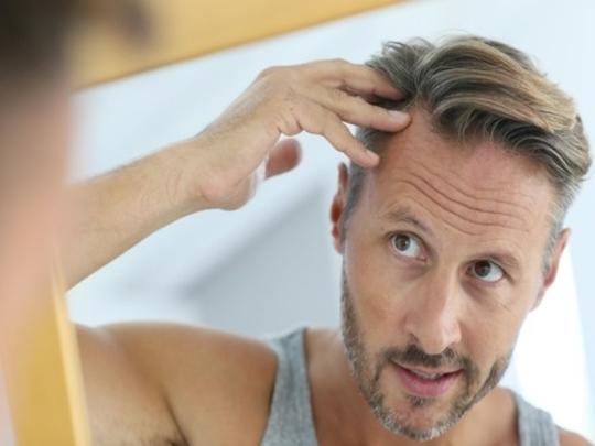 تساقط الشعر المزروع