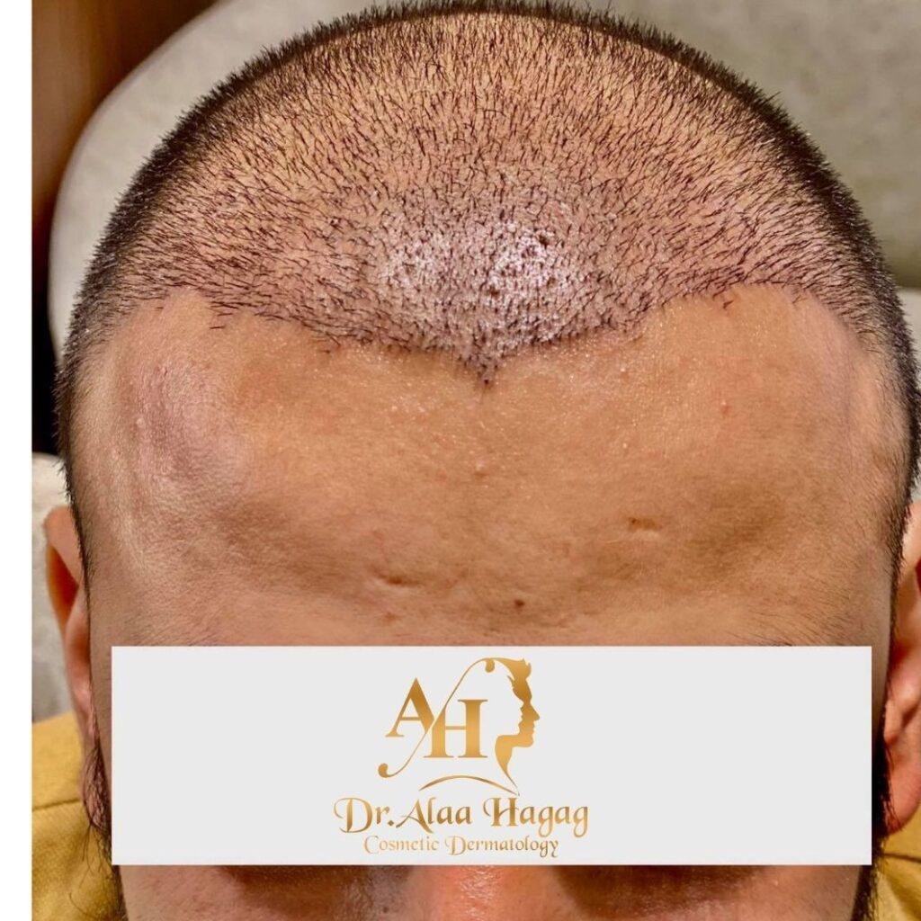 عمليات زرع الشعر في مصر