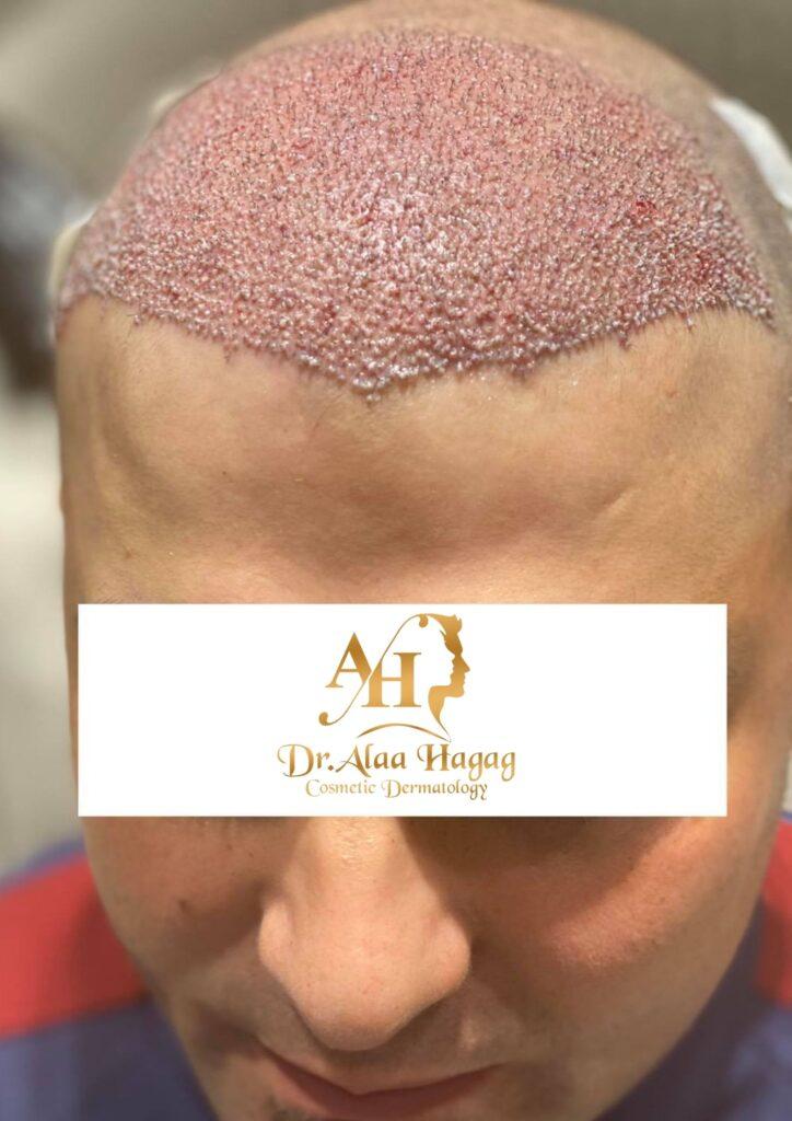 زراعة الشعر بدون حلاقة في مصر